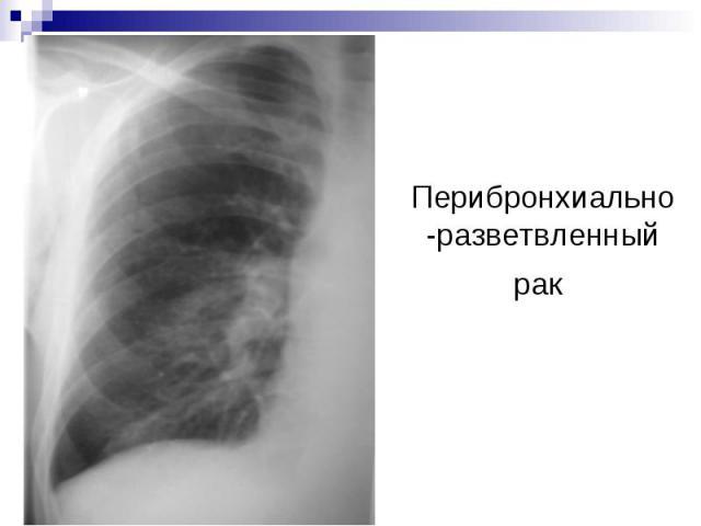 Перибронхиально-разветвленный рак