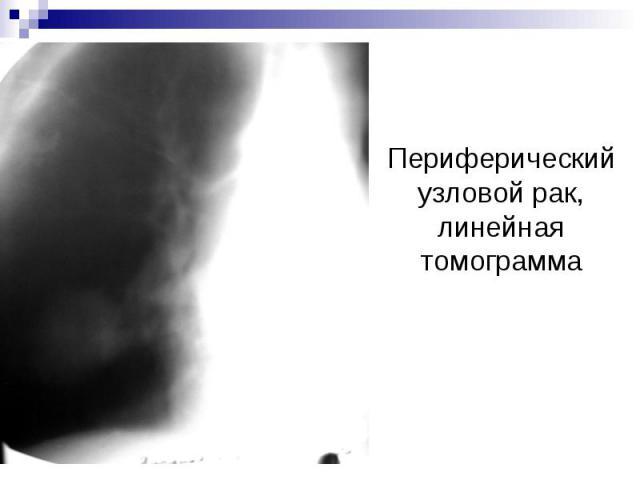 Периферический узловой рак, линейная томограмма
