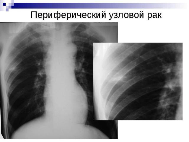 Периферический узловой рак