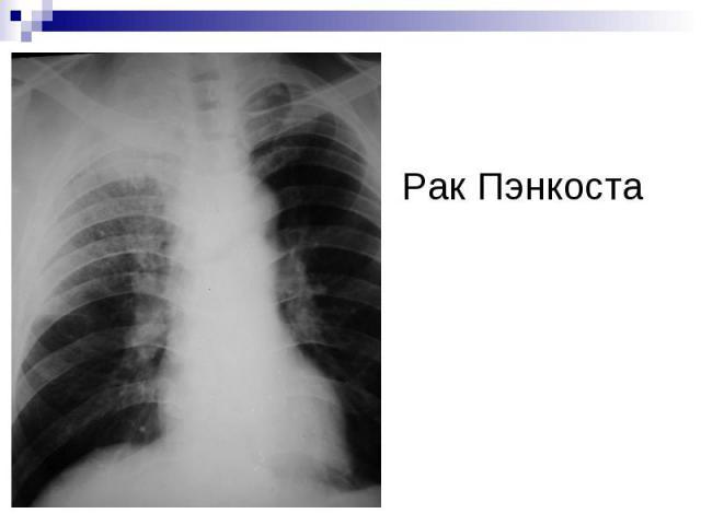 Рак Пэнкоста