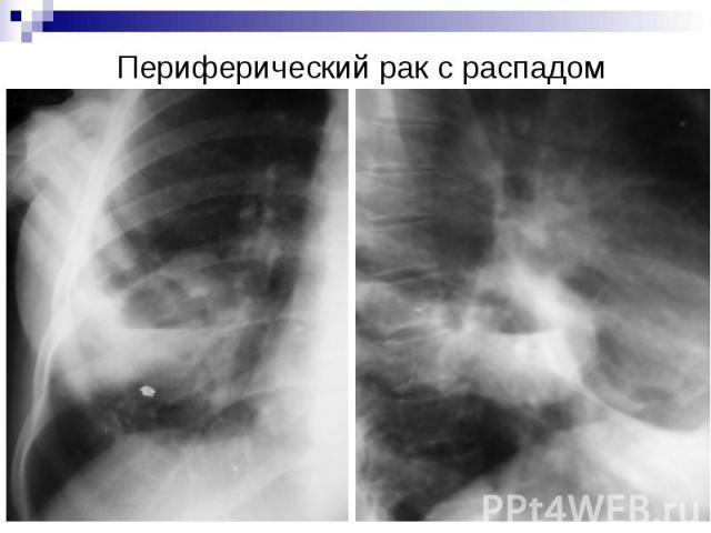 Периферический рак с распадом