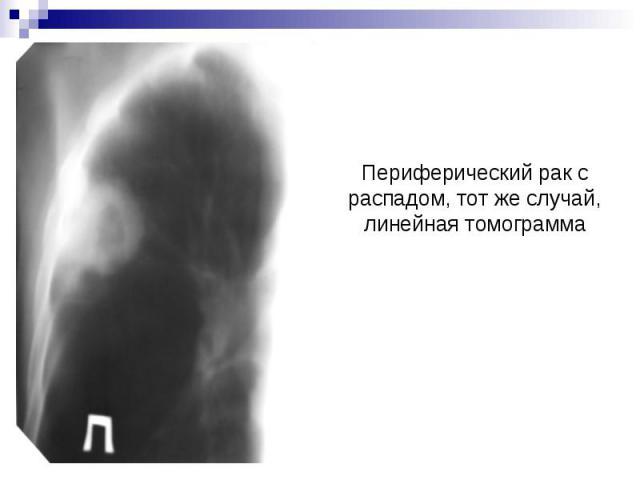Периферический рак с распадом, тот же случай, линейная томограмма
