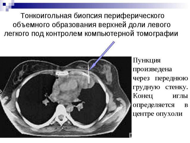 Тонкоигольная биопсия периферического объемного образования верхней доли левого легкого под контролем компьютерной томографии
