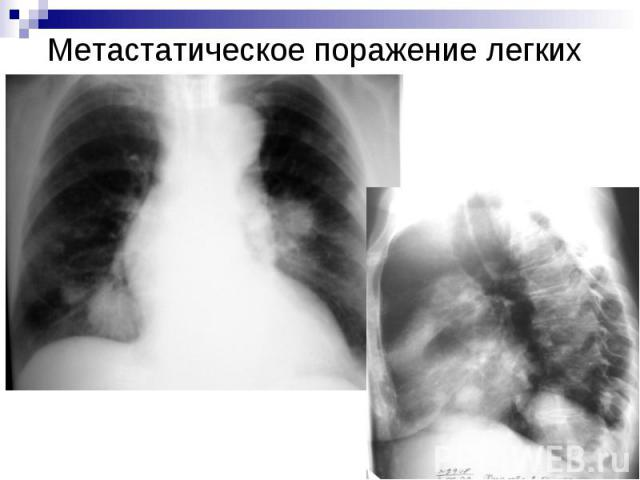Метастатическое поражение легких
