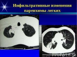 Инфильтративные изменения паренхимы легких