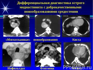 Дифференциальная диагностика острого медиастинита с доброкачественными новообраз