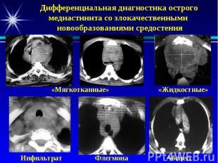 Дифференциальная диагностика острого медиастинита со злокачественными новообразо