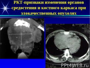 РКТ-признаки изменения органов средостения и костного каркаса при злокачественны