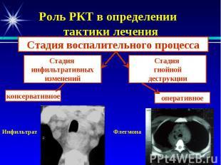 Роль РКТ в определении тактики лечения Инфильтрат Флегмона