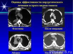Оценка эффективности хирургического лечения острого медиастинита Флегмона После