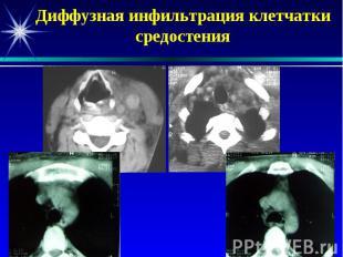Диффузная инфильтрация клетчатки средостения