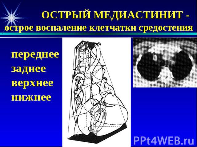 ОСТРЫЙ МЕДИАСТИНИТ - острое воспаление клетчатки средостения переднее заднее верхнее нижнее