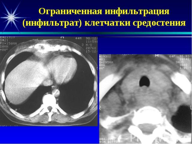 Ограниченная инфильтрация (инфильтрат) клетчатки средостения