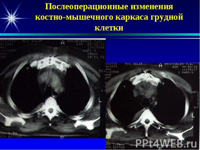 Послеоперационные изменения костно-мышечного каркаса грудной клетки
