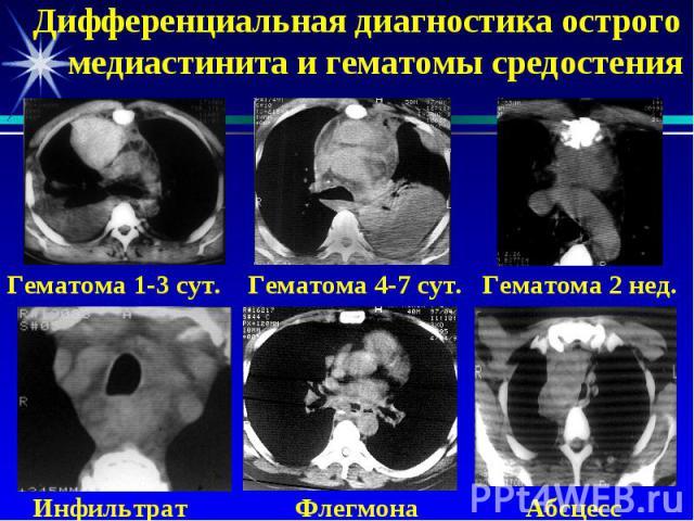 Дифференциальная диагностика острого медиастинита и гематомы средостения Гематома 1-3 сут. Гематома 4-7 сут. Гематома 2 нед. Инфильтрат Флегмона Абсцесс