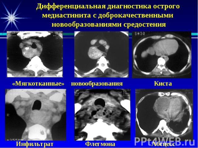 Дифференциальная диагностика острого медиастинита с доброкачественными новообразованиями средостения «Мягкотканные» новообразования Киста Инфильтрат Флегмона Абсцесс
