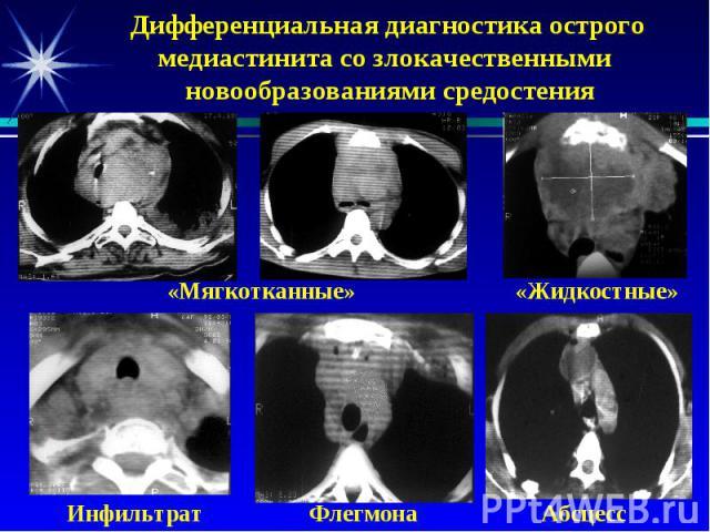 Дифференциальная диагностика острого медиастинита со злокачественными новообразованиями средостения «Мягкотканные» «Жидкостные» Инфильтрат Флегмона Абсцесс