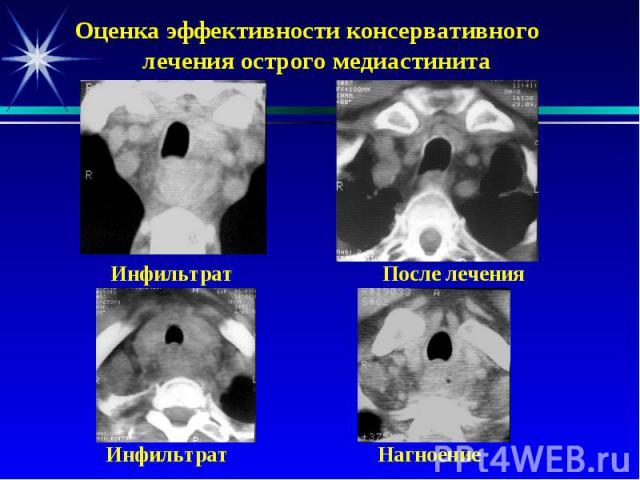 Оценка эффективности консервативного лечения острого медиастинита Инфильтрат После лечения Инфильтрат Нагноение