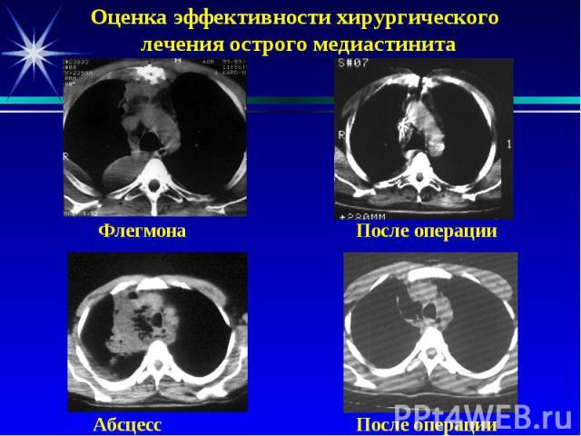 Оценка эффективности хирургического лечения острого медиастинита Флегмона После операции Абсцесс После операции