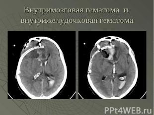 Внутримозговая гематома и внутрижелудочковая гематома