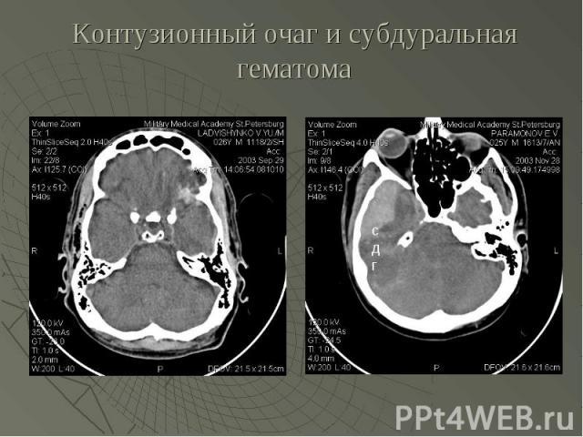 Контузионный очаг и субдуральная гематома