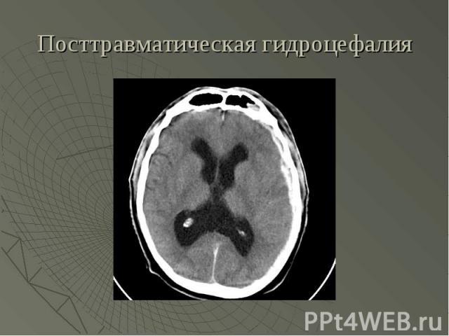 Посттравматическая гидроцефалия