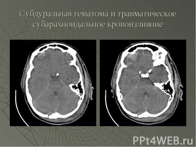 Субдуральная гематома и травматическое субарахноидальное кровоизлияние