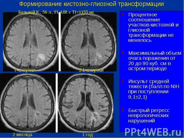 Мр признаки очаговых изменений вещества головного мозга