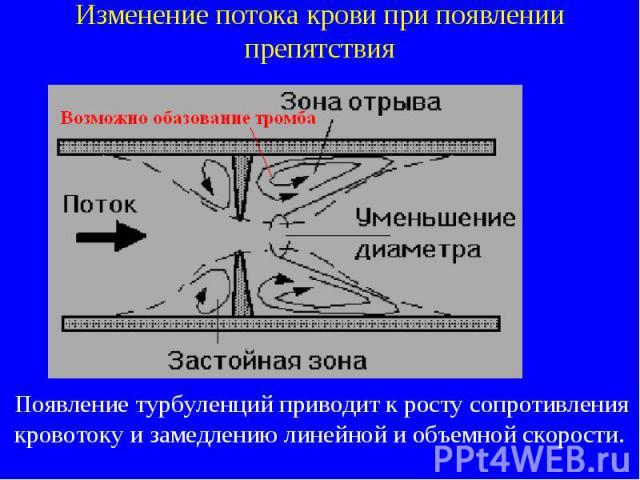 Изменение потока крови при появлении препятствия Появление турбуленций приводит к росту сопротивления кровотоку и замедлению линейной и объемной скорости.