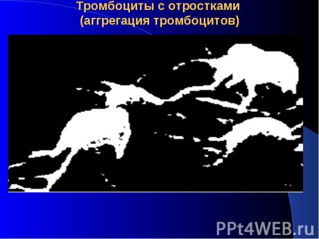 Тромбоциты с отростками (аггрегация тромбоцитов)