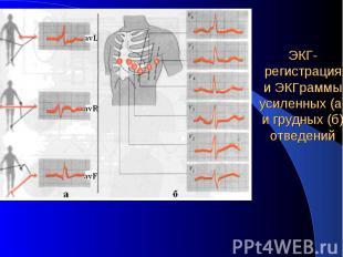 ЭКГ-регистрация и ЭКГраммы усиленных (а) и грудных (б) отведений
