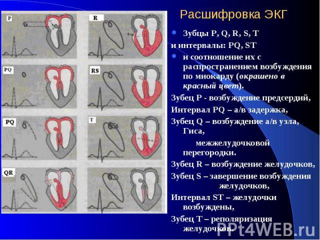 Расшифровка ЭКГ Зубцы P, Q, R, S, T и интервалы: PQ, ST и соотношение их с распространением возбуждения по миокарду (окрашено в красный цвет). Зубец Р - возбуждение предсердий, Интервал PQ – а/в задержка, Зубец Q – возбуждение а/в узла, Гиса, межжел…
