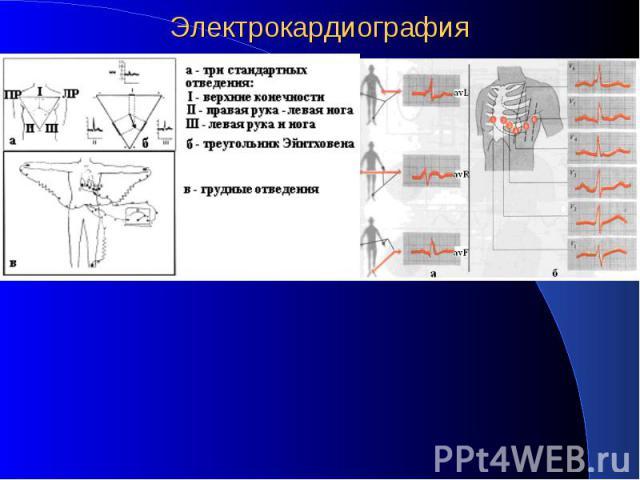 Электрокардиография