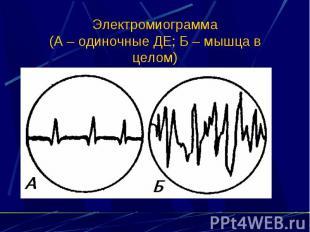 Электромиограмма (А – одиночные ДЕ; Б – мышца в целом)