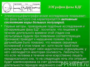 ЭЭГрафия фазы БДГ Электроэнцефалографическое исследование показывает, что фаза б