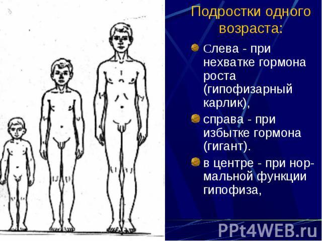 Подростки одного возраста: Слева - при нехватке гормона роста (гипофизарный карлик), справа - при избытке гормона (гигант). в центре - при нор-мальной функции гипофиза,