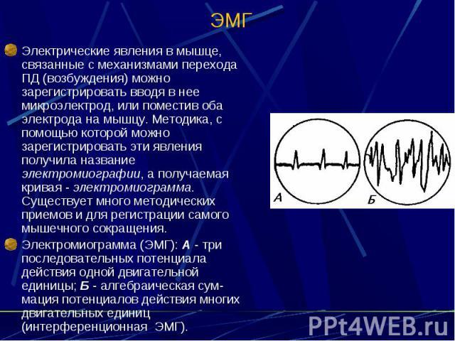 ЭМГ Электрические явления в мышце, связанные с механизмами перехода ПД (возбуждения) можно зарегистрировать вводя в нее микроэлектрод, или поместив оба электрода на мышцу. Методика, с помощью которой можно зарегистрировать эти явления получила назва…