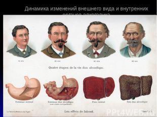Динамика изменений внешнего вида и внутренних органов алкоголика