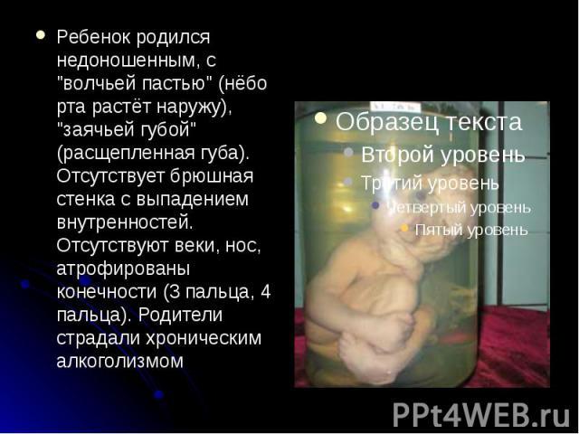 """Ребенок родился недоношенным, с """"волчьей пастью"""" (нёбо рта растёт наружу), """"заячьей губой"""" (расщепленная губа). Отсутствует брюшная стенка с выпадением внутренностей. Отсутствуют веки, нос, атрофированы конечности (3 пальца, 4 па…"""