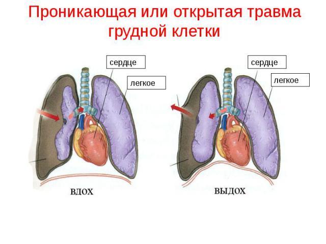 Проникающая или открытая травма грудной клетки