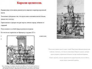 Короли-целители. Народная вера хотела явных доказательств священного характера к
