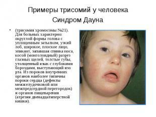 Примеры трисомий у человека Синдром Дауна (трисомия хромосомы №21). Для больных