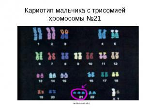 Кариотип мальчика с трисомией хромосомы №21