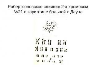 Робертсоновское слияние 2-х хромосом №21 в кариотипе больной с.Дауна