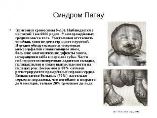 Синдром Патау (трисомия хромосомы №13). Наблюдается с частотой 1 на 6000 родов.