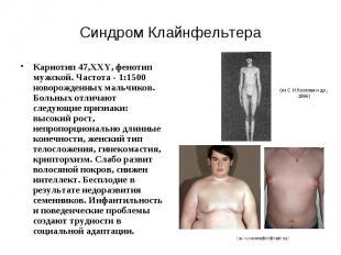 Синдром Клайнфельтера Кариотип 47,XXY, фенотип мужской. Частота - 1:1500 новорож