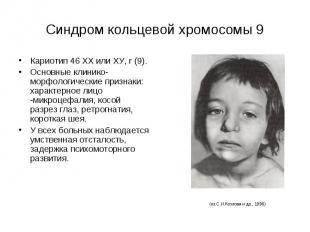 Синдром кольцевой хромосомы 9 Кариотип 46 ХХ или ХУ, r (9). Основные клинико-мор