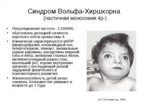 Синдром Вольфа-Хиршхорна (частичная моносомия 4р-) Популяционная частота - 1:100