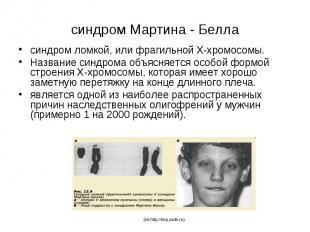 синдром Мартина - Белла синдром ломкой, или фрагильной Х-хромосомы. Название син