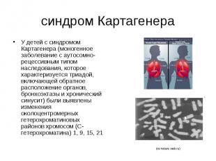 синдром Картагенера У детей с синдромом Картагенера (моногенное заболевание с ау